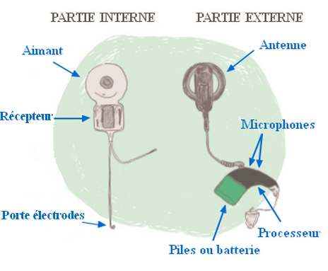 Parties interne externe